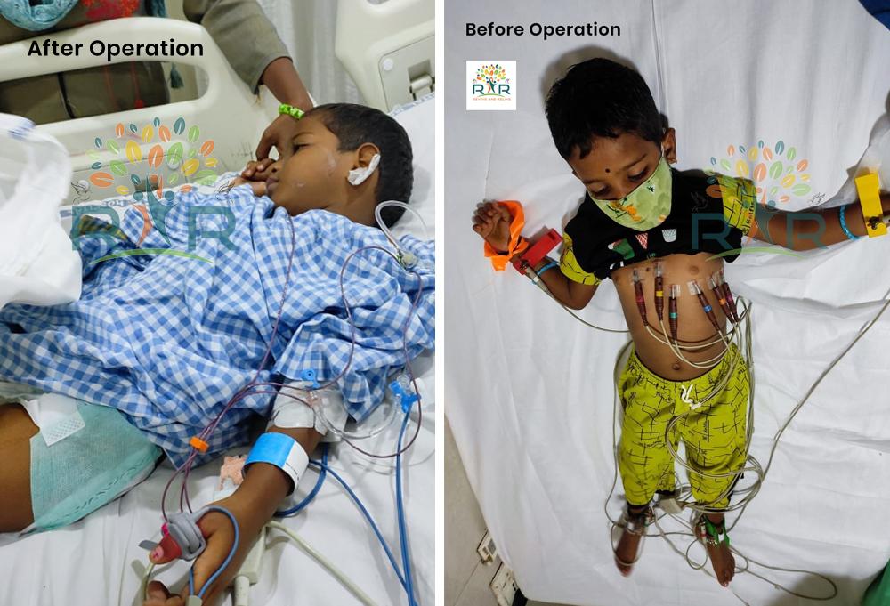 Heart Operation of 4 year old Rishvika - RAR Charitable Trust